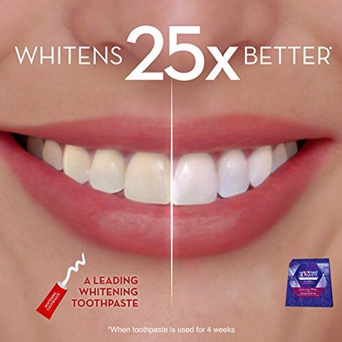 שונות Crest 3D White Luxe Whitestrip Teeth Whitening Kit, Glamorous ZD-88